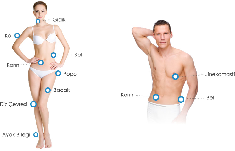 lazer-liposuction-ile-estetik